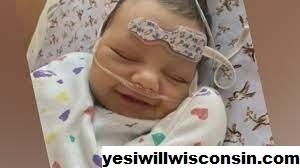 Bayi Wisconsin Membutuhkan Transplantasi Hati